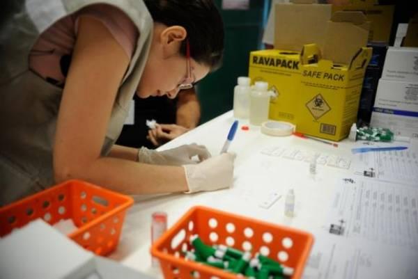 Sem o teste, a pessoa que tem o vírus só vai sentir sintomas quando a doença estiver em estágio muito avançadoTânia Rêgo/Agência Brasil
